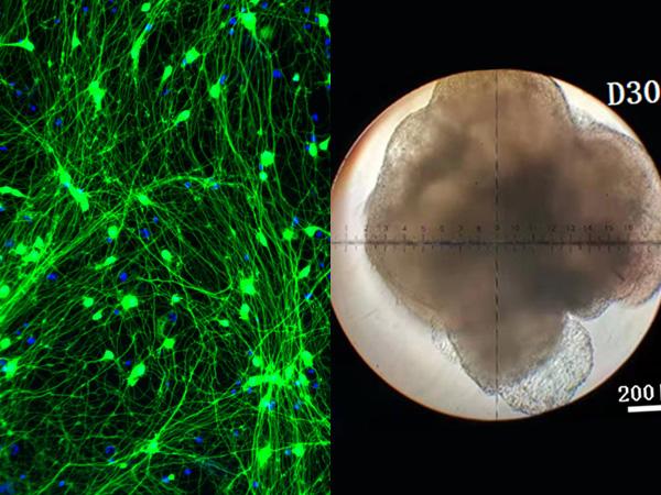 神經元與類腦體
