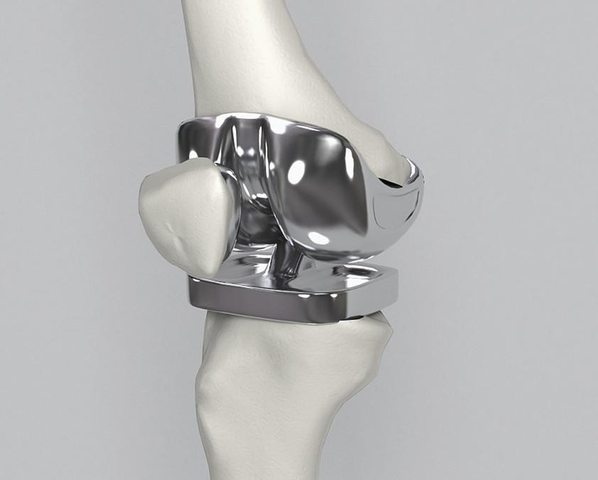 钴铬钼膝关节