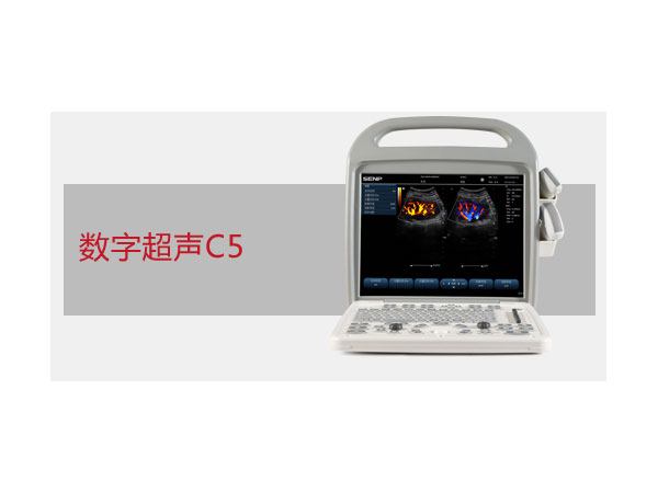 C5便攜式彩色超聲系統